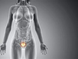 Циститът е възпалително заболяване на пикочния мехур, характеризиращо се с често, болезнено уриниране, което се проявява предимно при жените.